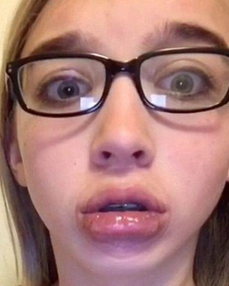 Кайли Дженнер призналась, что увеличила губы