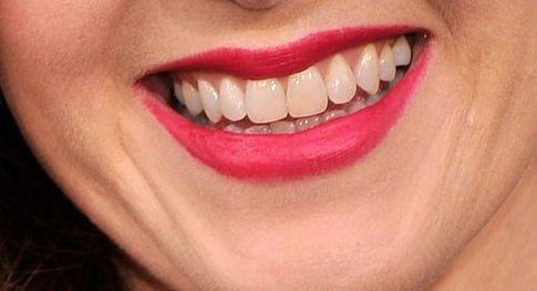 Отбеливание зубов: на чем остановиться