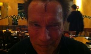 Арнольд Шварценеггер получил травму на съёмках фильма