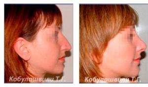 Ринопластика носа, особенности операции